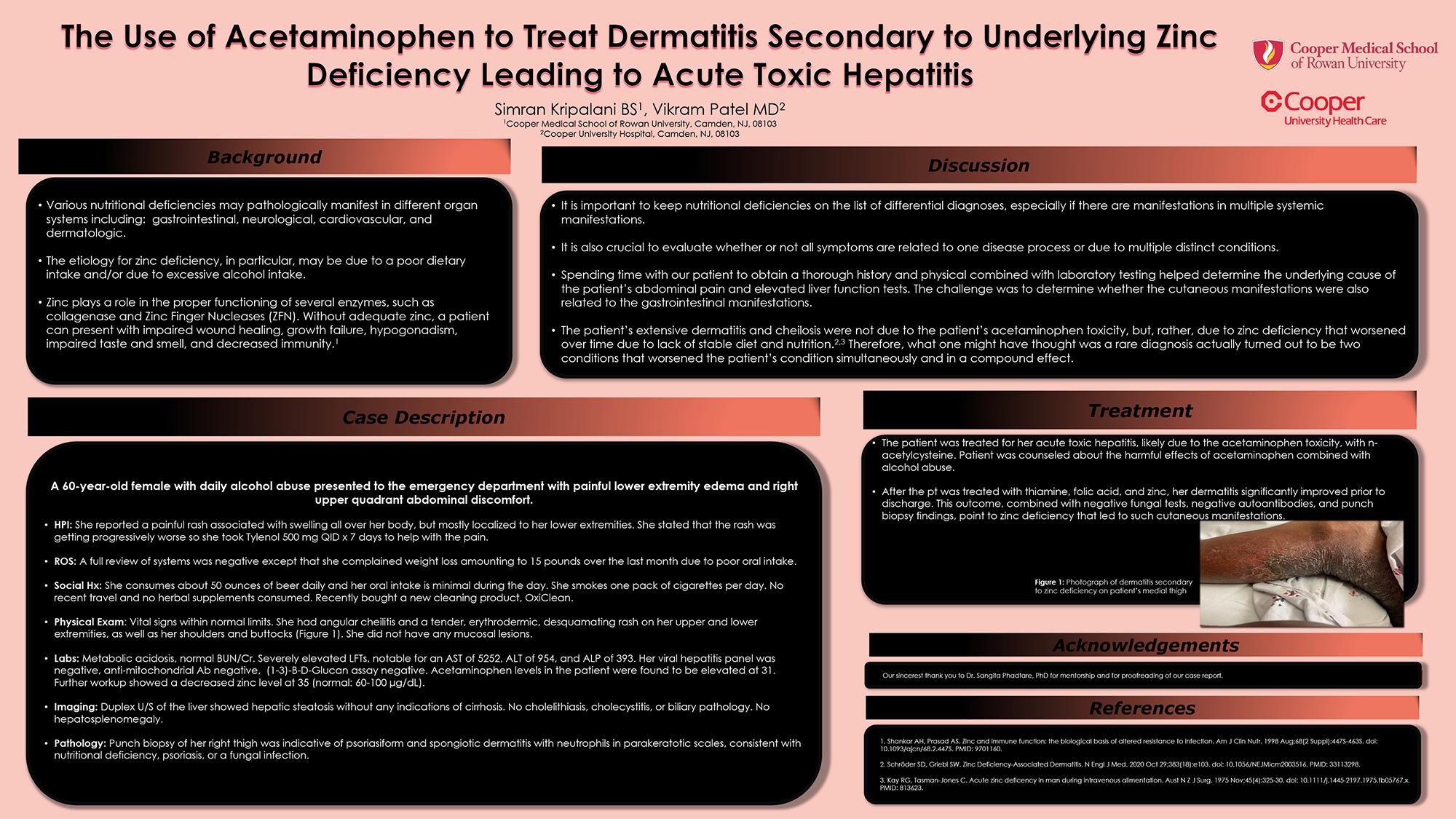 39-CVS-4-The Use of Acetaminophen to Treat Zinc Deficiency Dermatitis