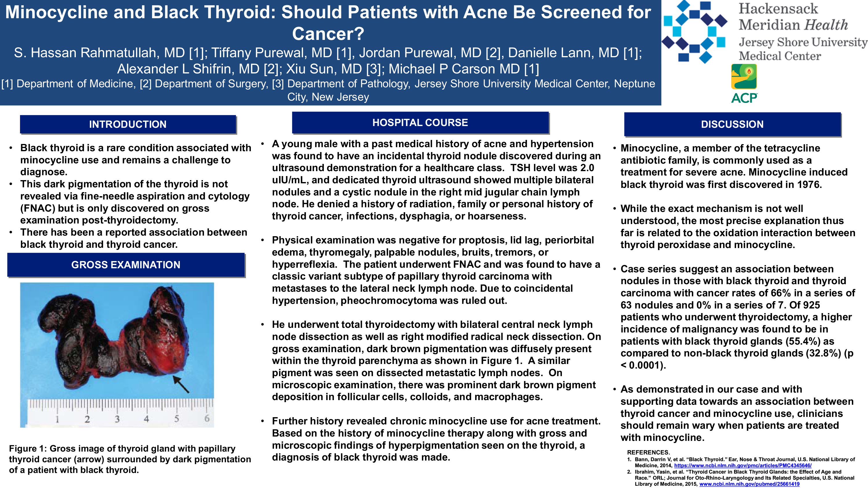 19-CV-40-Minocycline and Black Thyroid Should Patients with Acne be Screened for Cancer