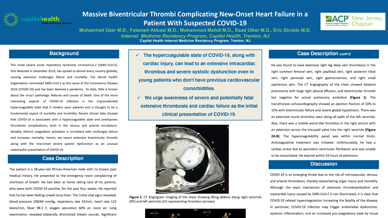 22-CV-56-Massive Biventricular Thrombi Complicating New-Onset Heart Failure