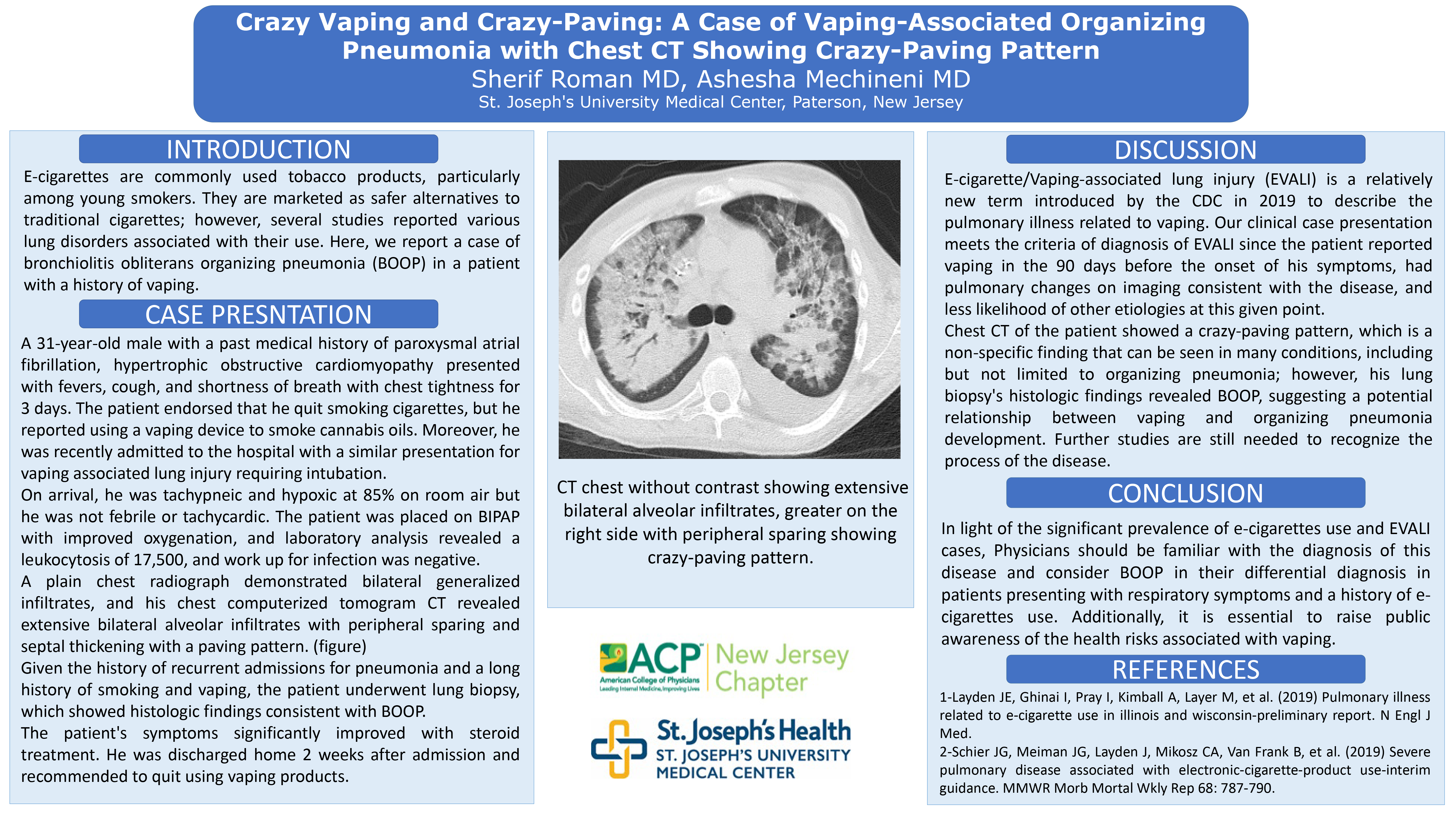 30-CV-98-Crazy Vaping and Crazy-Paving A Case of Vaping-Associated Organizing Pneumonia with Chest CT