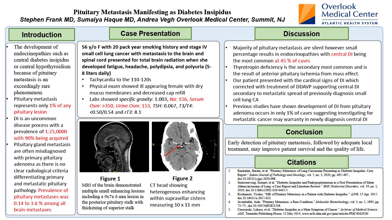 34-CV-142-Pituitary Metastasis Manifesting as Diabetes Insipidus